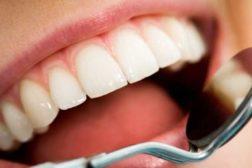 Irritert deg over høy tannlegeregning?